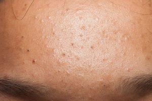 acne ritentiva