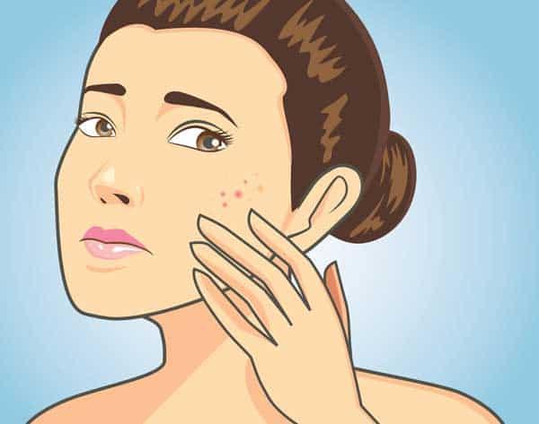 acne rétentionnelle