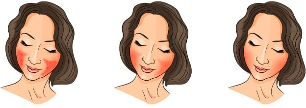 woman and rosacea