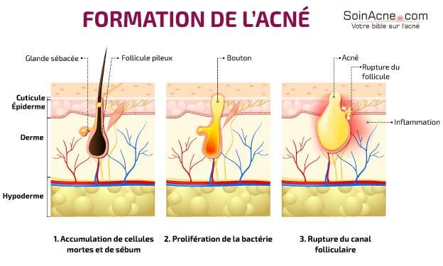 formazione acne