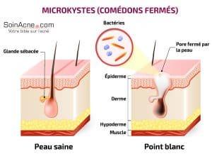 formazione di comedoni chiusi (microcisti)