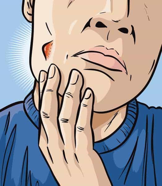 homme acne base connaissance