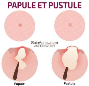 difference between papule and pustule