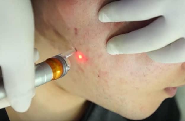 Laser-Akne-Behandlung